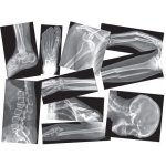 Roylco Broken Bones X-Rays Set, Translucent, 15 Pieces (RYLR5914)